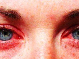 fatigue des yeux