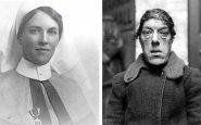 L'histoire de Mary Ann Webster, qui est devenue la femme la plus laide du monde à cause d'une maladie