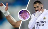 Euro-2021 : Qu'est-ce que l'étrange bandage de Karim Benzema à la main pendant deux ans ?
