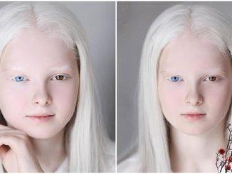L'albinisme et l'hétérochromie conjugués chez une même personne provoquent une beauté inhabituelle