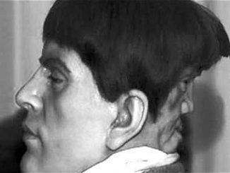 La véritable histoire d'Edward Mordrake, l'homme aux deux visages