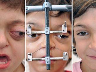 Un syndrome rare a défiguré son visage à la naissance